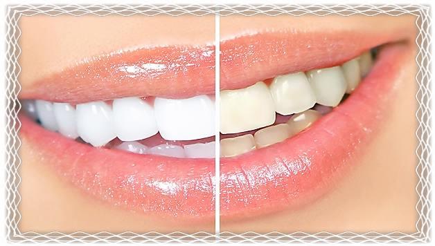 Рецепт для домашнего отбеливания зубов! 0