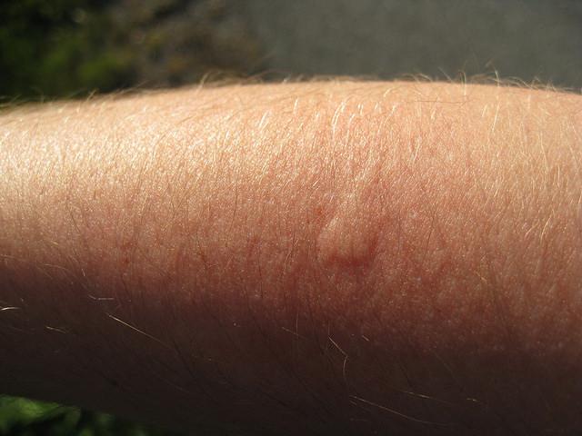 Как облегчить зуд после укуса насекомого? 0