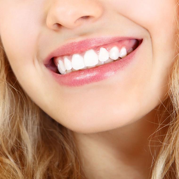 Как устранить зубной камень и отбелить зубы 0