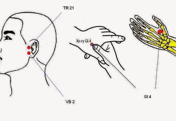 Точечный массаж при головной боли 2