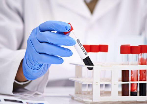 Разбираемся в анализе крови 0